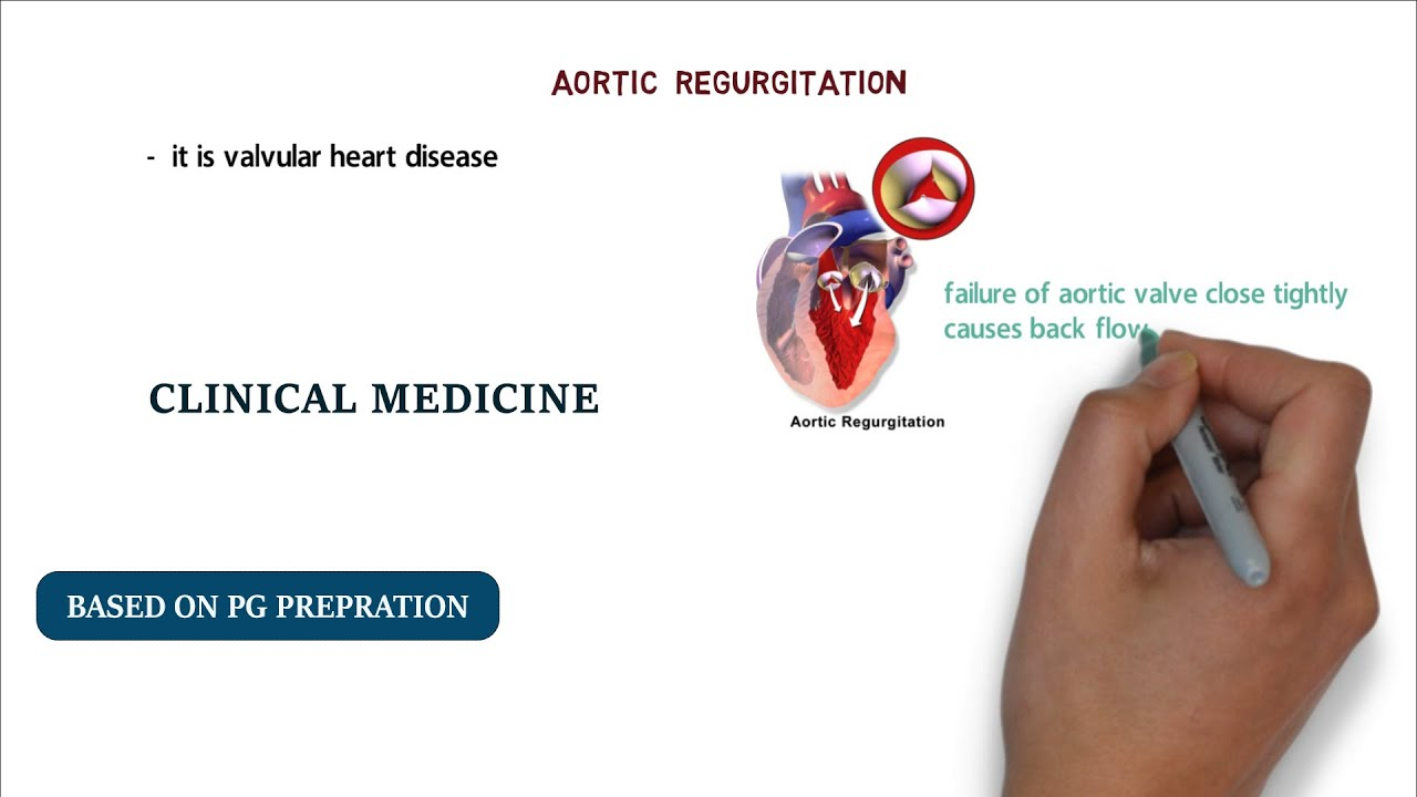 SIGNS OF AORTIC REGURGITATION   PG NOTES - YouTube