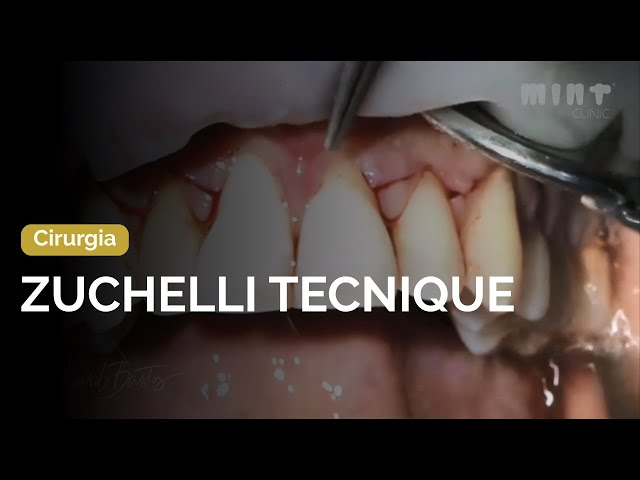 Zuchelli tecnique for the treatment of gingival recessions