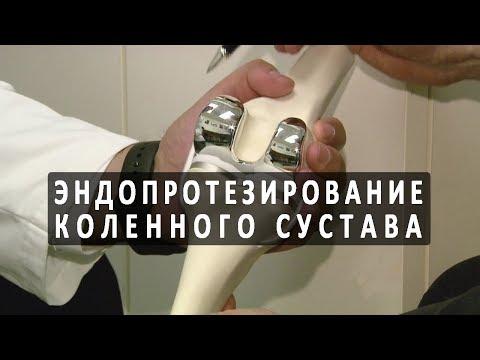 Операция по протезированию коленного сустава