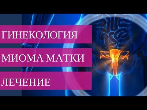 Методы лечения МИОМЫ МАТКИ. Обязательно к просмотру женщинам после 40 лет!