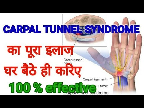 CARPAL TUNNEL SYNDROME TREATMENT- Complete Cure - 100 % Effective Treatment Of CTS
