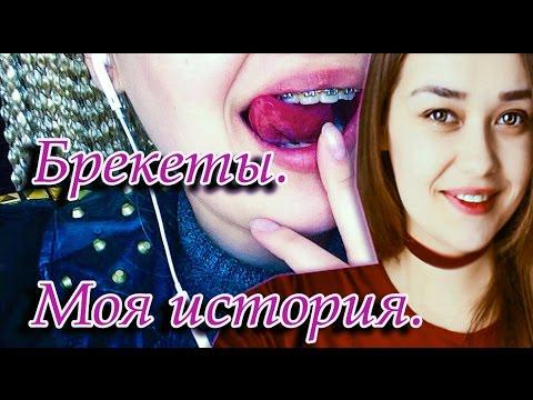 Брекеты. Моя история. + фото до/после