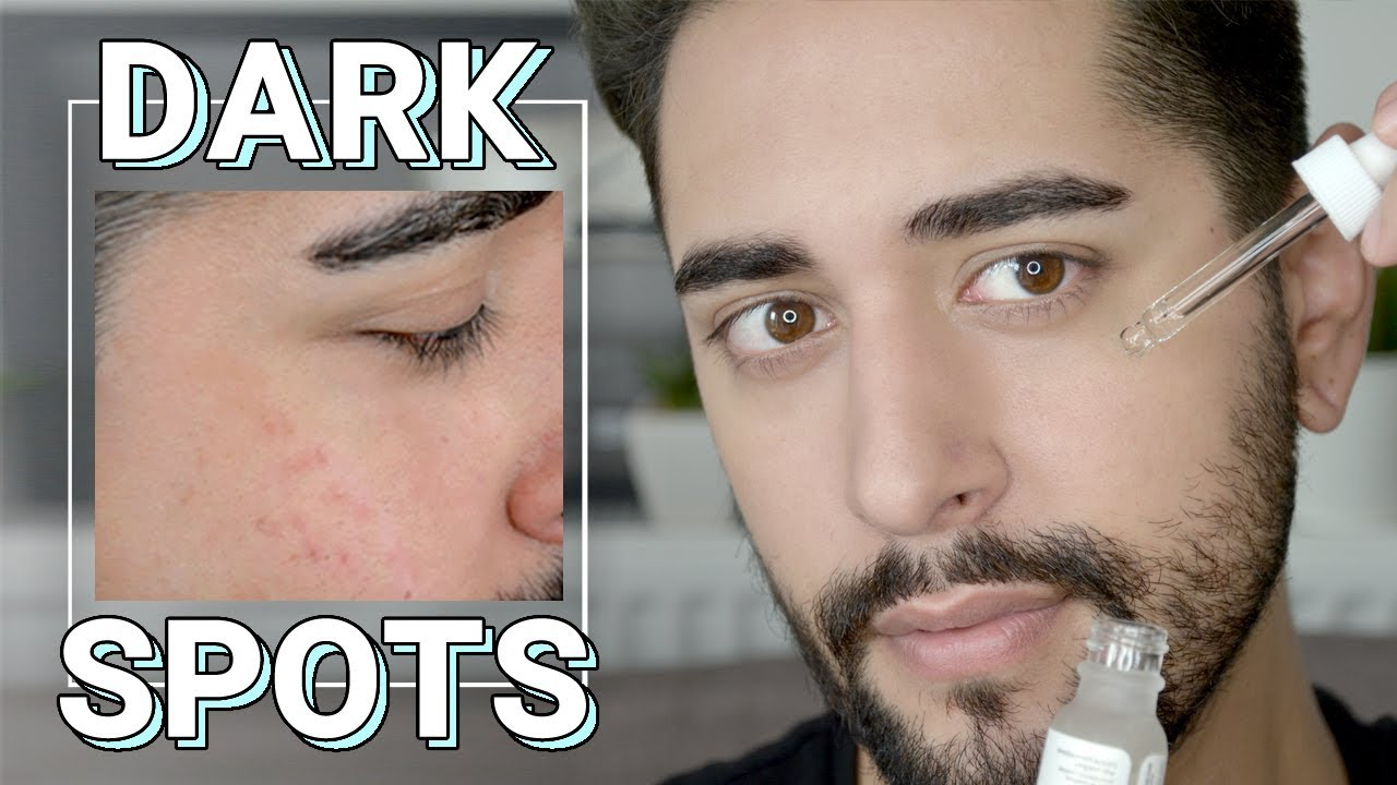 How To Remove Dark Spots On Face pt 2 - Cosmetics & Grooming For Oily Acne  Prone Skin ✖ James Welsh