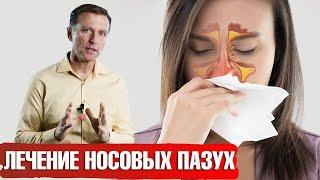 ПРОФИЛАКТИКА ПРОСТУДЫ. Топ витаминов для лечения носовых пазух.