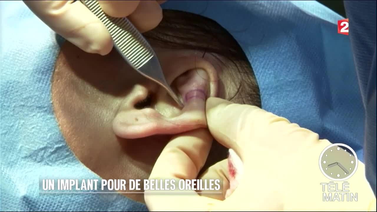 Sante Un Implant Pour De Belles Oreilles Youtube