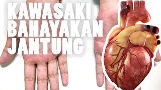 Virus Kawasaki, Seperti Apa Tanda-Tandanya? | IDN Times Video....