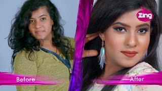 Gambar cover Sensitive Skin and Frizzy Hair - Hindi Tv Episode 2 - Dazller Eterna Love Yourself - Pallavi Kataria