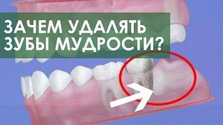 Удаление зубов мудрости. Стоматология ПрезиДЕНТ в Марьино(Удаление зубов мудрости - одно из самых распространённых хирургических вмешательств на сегодняшний день,..., 2016-08-22T11:33:56.000Z)