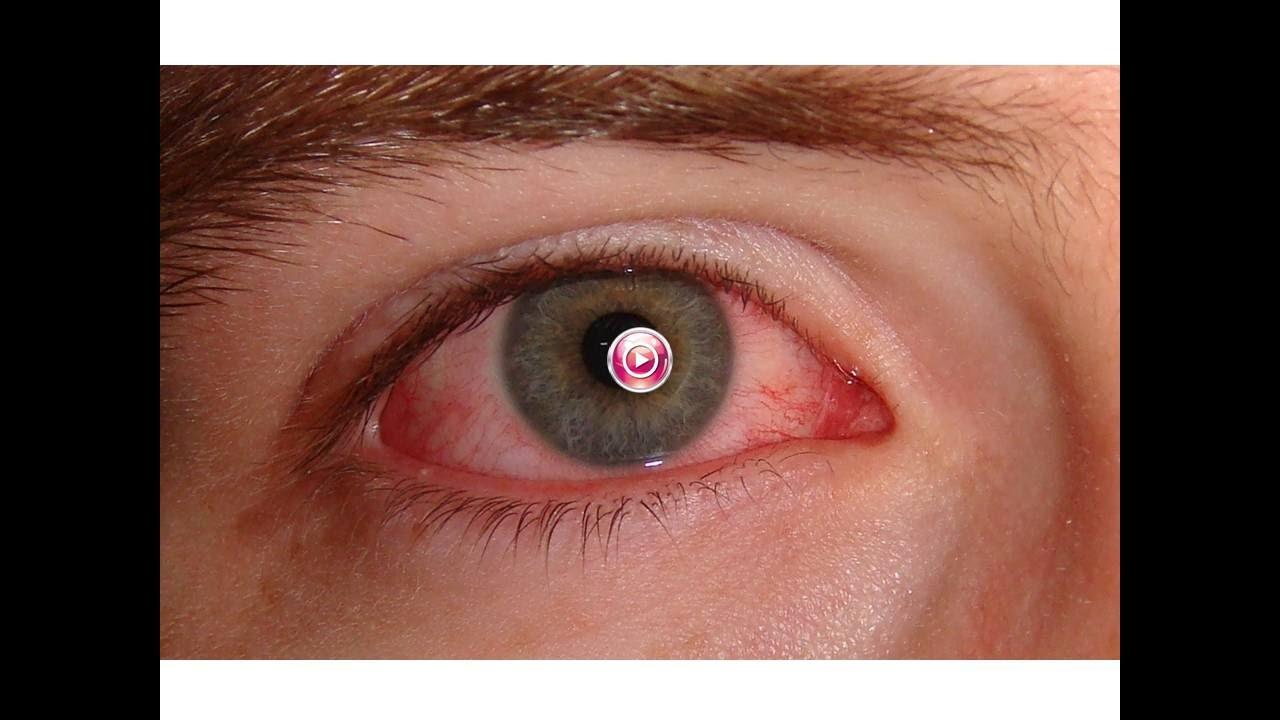 mejores gotas para los ojos para la infección ocular en la india