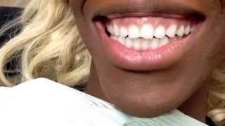 The TexasToothLady..Wow!!Snap-on Smile does it again! Eliminates a gummy smile!