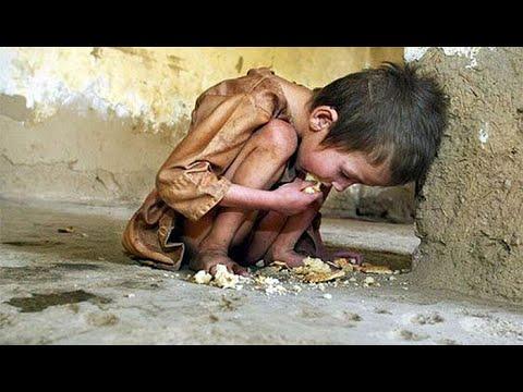 ABHINAV - Why Are Children Hungry ?