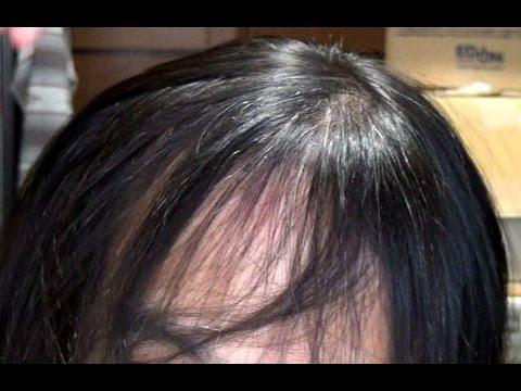 矯正 縮 で 毛 自分