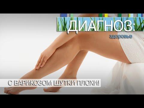Варикоз, варикозное расширение вен - Симптомы и лечение