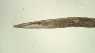 Trypanoxyuris (Trypanoxyuris) minutus ♀