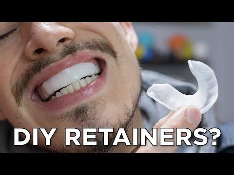 $10 DIY Retainers?! // InstaMorph Moldable Plastic - YouTube
