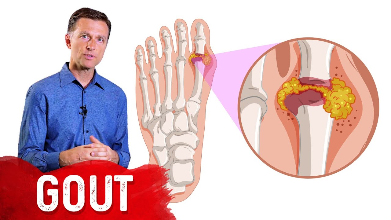 The 7 Natural Remedies for Gout