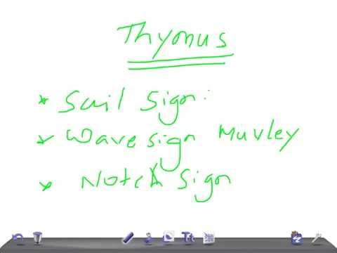 QUICK RADIOLOGY: Thymus on X ray