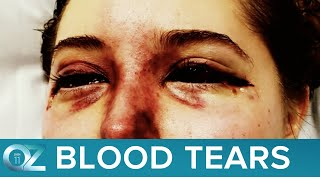 Why Is This Teen Crying Bloody Tears?