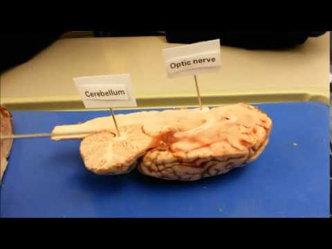 Sheep Brain Dissection Parts Functions Youtube
