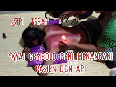 pengobatan tradisional masuk angin capekxx pusing warisan leluhur from YouTube · Duration:  7 minutes 28 seconds