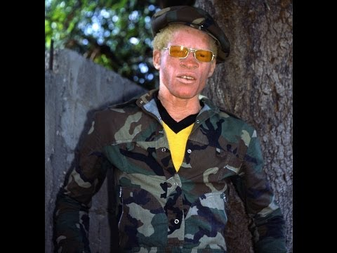Yellowman at Reggae Sunsplash 1988