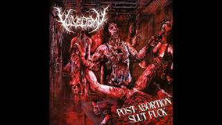 Vulvectomy - Post-Abortion Slut Fuck (full album)