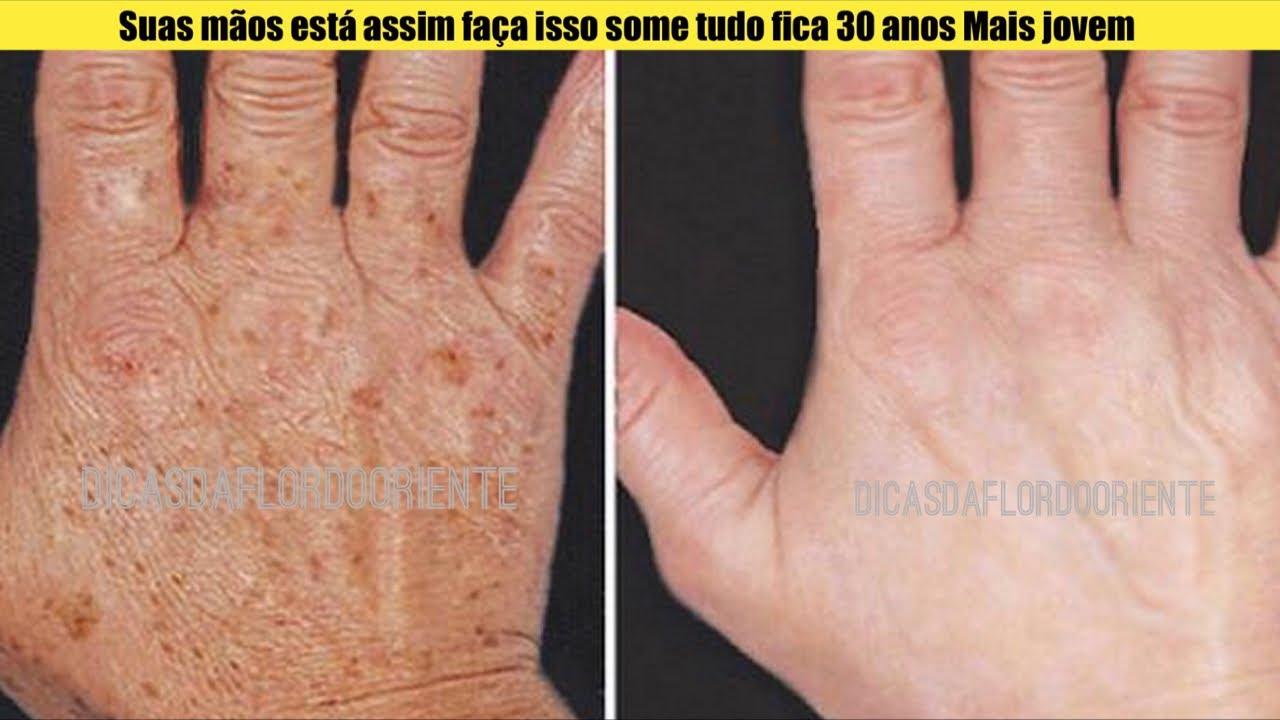 Mistura para tratar mãos enrugada com manchas