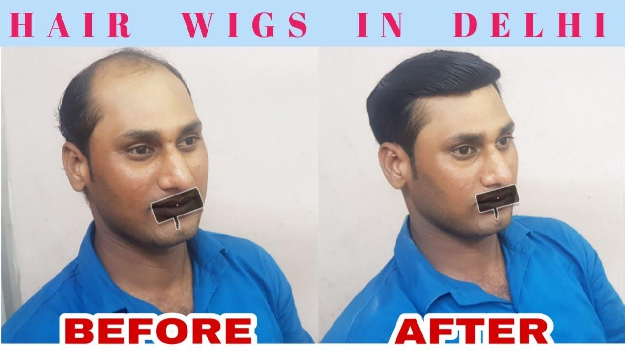 Hair wigs shop in delhi  . Front lace hair patch wigs  . Hair wigs price manufacturer supplier delhi