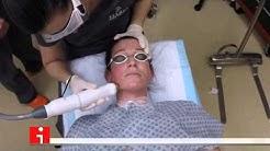 Non-Surgical Facelift - Boca Raton Plastic Surgery