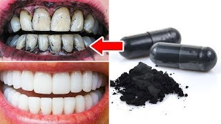 My Teeth were Yellowish, but then I Applied this Home Whitening Remedy