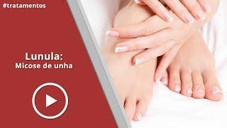 Micose de Unha  Laser Lunula - Dermatologista Erasmo Tokarski | #32
