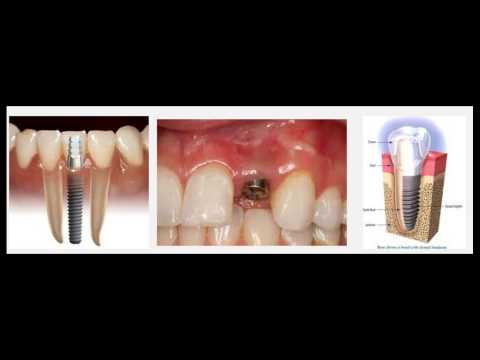 Affordable Dental Implants Yuma AZ