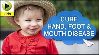 Kids Health: Hand, Foot and Mouth Disease- Natural Home Remedies for Hand,Foot and Mouth Disease