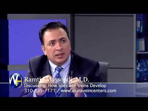 How Varicose Veins Develop with Beverly Hills Vein Specialist Ramtin Massoudi, MD