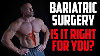 My Thoughts on Bariatric Surgery