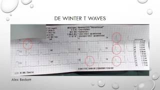 12 Lead ECG Episode 5 - De Winter T Waves