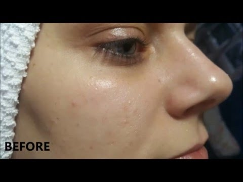 A Facial Cleanse: Before & Immediately After