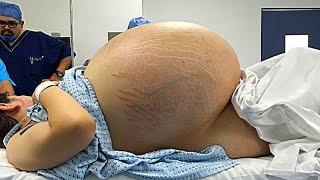 Kadın Bir Türlü Doğum Yapamıyordu. Ardından Doktorlar Karnındaki Şişliğin Sebebini Öğrendi