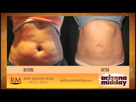 How to burn fat faster at home naturally