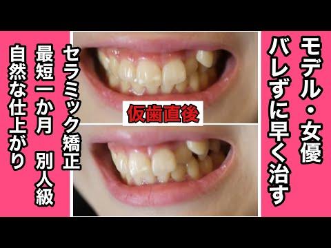 前歯の斑点と歯の黄ばみ、八重歯が気になっていた
