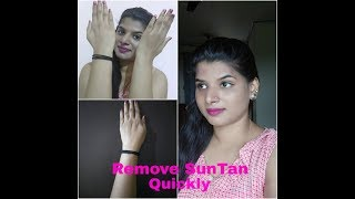 How to Remove Sun tan Quickly-Natural Home Remedies to Remove Suntanfrom hands/body/face Quickly
