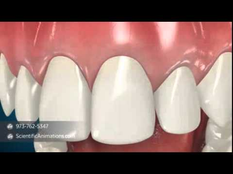 Esthetical Crown Lengthening Animation Youtube This is closed crown lengthening by gloh education on vimeo, the home for high quality videos and the people who love them. youtube