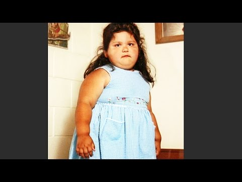 OBESE child TRANSFORMED into a HEALTHY version of herself