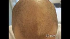 Finasteride Propecia Proscar results