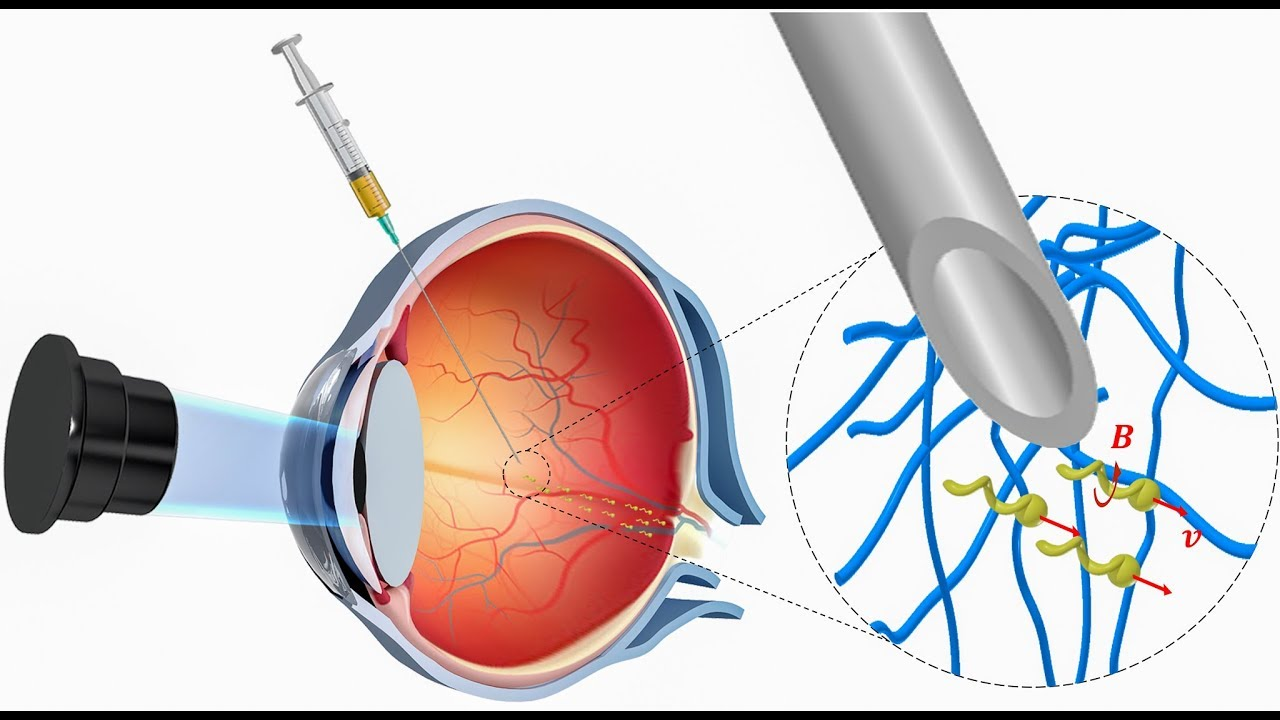 hight resolution of nanorobots propel through the eye