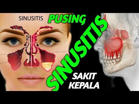 cara-menyembuhkan-penyakit-sinusititis-secara-alami