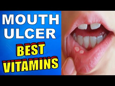 What is the BEST VITAMIN for MOUTH ULCERS