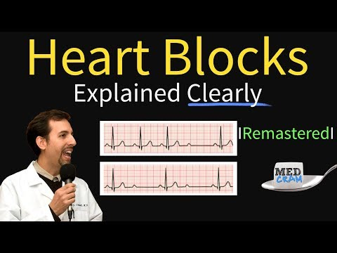 Heart Blocks Explained - First, Second, Third Degree And Bundle Branch On ECG
