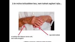 váll kezelés újság nagymama)