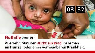 Cholera und Hunger im Jemen: Alle zehn Minuten stirbt ein Kind